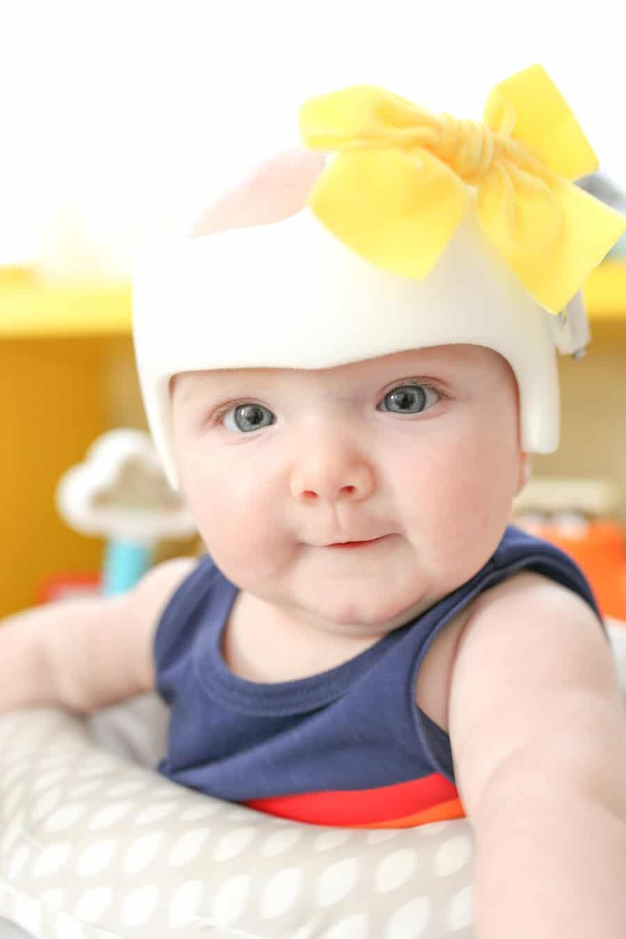 Plagiocephaly and Helmet Journey, Cranial Tech, Cranial Technologies, DOC Band Helmet, Hanger Clinic, STAR Band, Cranial Helmet, Torticollis, How to Clean a Cranial Helmet, How to Decorate a Cranial Helmet, How Long is a Cranial Helmet Worn?, What is Plagiocephaly?, What Causes Plagiocephaly?, Doc Band Review